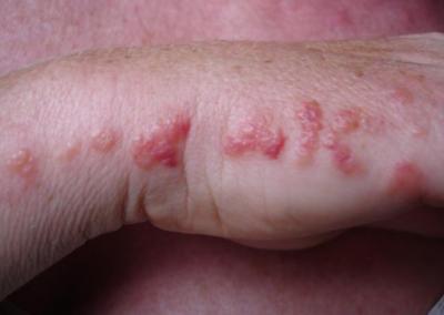 Bed Bug Bites CRS